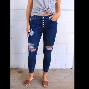 NWT Free People Reagan Button Front Skinny Jean 30